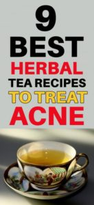 How to Use Herbal Tea for Acne – 9 Best Tea Recipes to Clear Acne