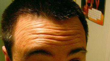 get rid of forehead wrinkles