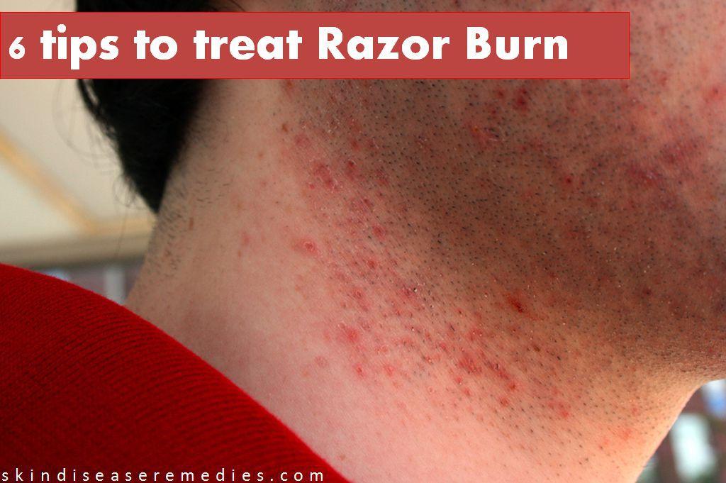How To Get Rid Of Razor Burn Instantly Skin Disease Remedies