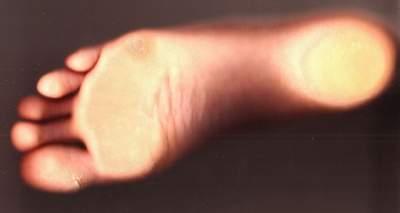 How To Get Rid Thick Skin Under Toenails Fingernails 5 Diy Recipes