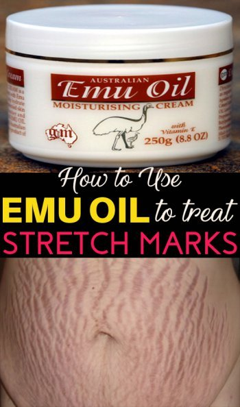 How to Use Emu Oil for Stretch Marks - One Effective Remedy - Skin