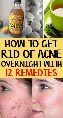 se débarrasser de l&#39;acné &quot;width =&quot; 250 &quot;height =&quot; 471 &quot;/&gt;</p><p>Êtes-vous l&#39;un d&#39;entre eux qui lutte avec une peau sensible et à tendance acnéique? Marre de tous les produits de soins de la peau coûteux et toujours incapable d&#39;obtenir une peau claire et lisse? Si oui, lisez l&#39;article complet pour connaître les meilleurs remèdes pour vous débarrasser facilement de l&#39;acné probablement du jour au lendemain.</p><p>Je sais qu&#39;ils semblent toujours vous frapper avant un événement important, des vacances ou une soirée. Cet article vous fournira 12 remèdes efficaces qui vous aideront à vous débarrasser de l&#39;acné du jour au lendemain sans aucun effet secondaire.</p><p></p><p>Mais souvenez-vous d&#39;une chose, chaque peau est différente, et ce qui fonctionne vraiment bien pour quelqu&#39;un peut ne pas fonctionner pour d&#39;autres. Donc, avant d'utiliser un remède directement sur la zone sujette à l'acné, assurez-vous d'avoir fait le test de patch sur la peau. Si vous ressentez des irritations et des allergies sur la peau, ce n'est pas le remède qui vous convient.</p><h3>12 remèdes maison efficaces pour se débarrasser de l&#39;acné</h3><h4>Pâte à dents n ° 1:</h4><p>Le dentifrice est l'un des meilleurs remèdes pour se débarrasser des boutons du jour au lendemain. Les propriétés antibactériennes du dentifrice éliminent les bactéries et assèchent complètement le bouton.</p><p> <strong>Ce que vous devez faire:</strong></p><ul><li>Prenez une petite quantité de dentifrice blanc sur votre doigt et appliquez directement sur le bouton à l&#39;aide d&#39;un coton-tige.</li><li>Laissez-le passer la nuit et laissez-le fonctionner comme une magie pour éliminer l&#39;acné.</li></ul><h4>N ° 2 vinaigre de cidre:</h4><p>Le vinaigre de cidre agit comme un agent antibactérien réduisant les bactéries dans la peau. Sa nature acide contrôle la production de sébum sous la peau et agit comme astringent.</p><p> <strong>Ce que vous devez f